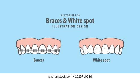 Braces & White spot illustration vector on blue background. Dental concept.