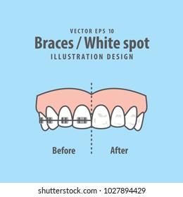 Braces-White spot illustration vector on blue background. Dental concept.