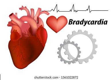 Bradycardia Images, Stock Photos & Vectors   Shutterstock