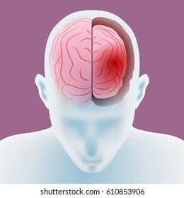 brain atrophy, structure of human brain