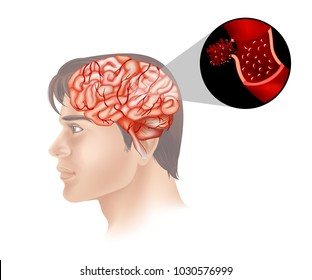 Brain cancer in human illustration