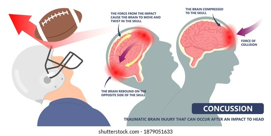 Brain Injury mild post head bleed sport loss second bump blow jolt hit skull ear contact hockey trauma fall pain athlete ball rugby play