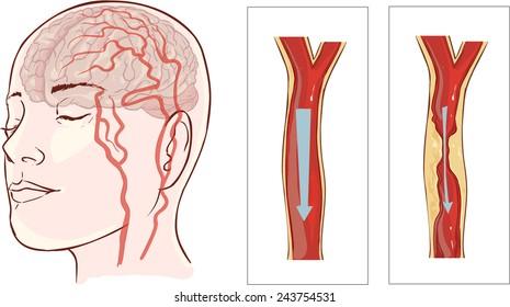 brain stroke. Cerebral infarction