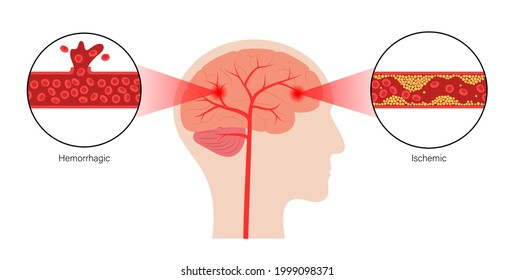 Brain stroke, hemorrhagic and ischemic problem. Arteriosclerosis, infarct, ischemia, thrombosis disease. High ldl and hdl level. Cholesterol in human blood vessels. Medical poster vector illustration.