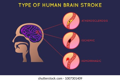 Brain Stroke icon design, infographic health, medical infographic. Vector illustration