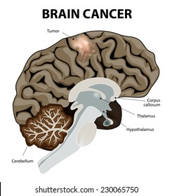 A brain tumor is an abnormal growth of tissue in the brain. Human anatomy