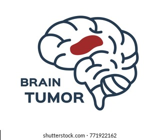 brain tumor vector icon