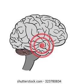 Brain in vector. Headache. Place of pain in brain.