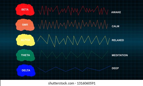 Brain wave frequencies on black background.