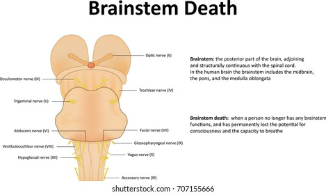 Brainstem Death