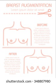 Breast Augmentation Concept Infographic. Vector poster. Modern style. Before and after.