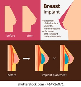 Breast augmentation infographics. Breast implants vector illustration