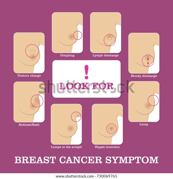 Breast Cancer Symptoms Infographic Methods Detecting Stock Vector