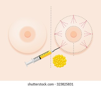 Breast fatgraft surgery image with injection and extracted fat
