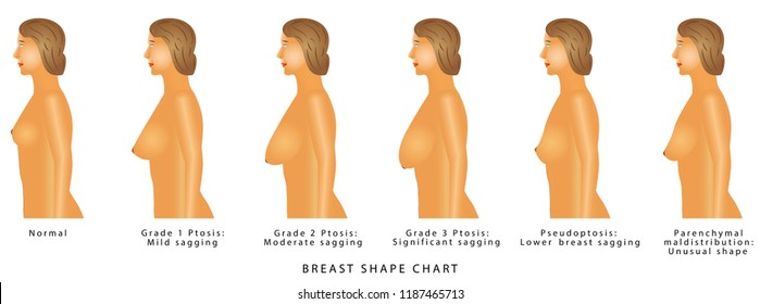 Breast Shape chart.  Degrees of breast ptosis. Set with woman bust. Breast size and type on a white background.