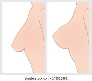 Breast Uplift before and after treatment. Vector illustration.