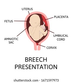 Breech presentation. Fetal baby positions in the uterus during pregnancy. Breech lies. Colored medical vector illustration. Fetus with umbilical cord and placenta.