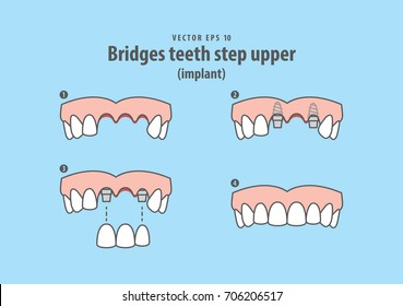Bridges teeth step upper (implant) illustration vector on blue background. Dental concept.