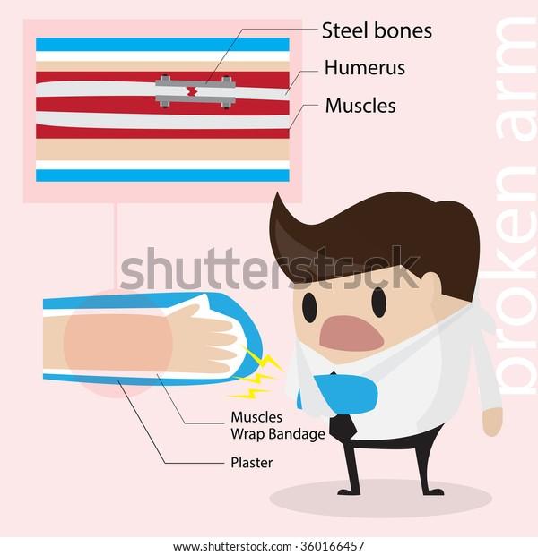 Human arm bone- humerus Clipart | k14284573 | Fotosearch
