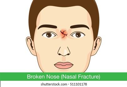 Broken nose on facial of man. Illustration about medical.