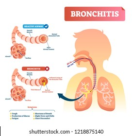 Bronchitis vector illustration. Lung disease diagnosis. Labeled medical diagram with healthy airway and illness. Pulmonary problem and symptoms like cough, fatigue, breath shortness, chills and fever.
