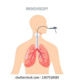 Bronchoscopy - lungs diagnotic concept. Vector illustration in flat style. Template for web banners, advertising, posters, infographics etc.