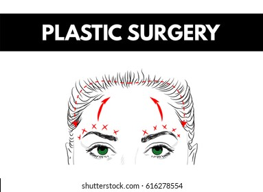 Brow lift. Plastic surgery. Cosmetic surgery. Vector Illustration.