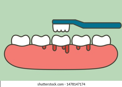 brushing teeth with bleeding on gum and tooth, gingivitis or scurvy concept - dental cartoon vector flat style cute character for design