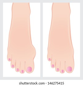 Bunion before and after operation. Vector illustration.