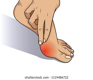 Bunion at sides of foot.