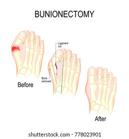 Bunionectomy is a procedure to correct of pathologies and deformity of the joint connecting the big toe to the foot. Before and after of Surgery. Healthy foot and foot with Bunion. Human Skeleton
