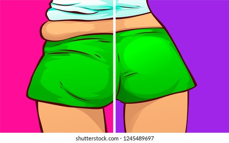 Buttocks, before-after. Vector illustration