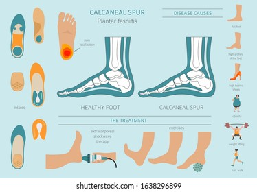 Calcaneal spur. Plantar fasciitis set. Medical desease infographics collection. Vector illustration
