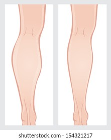 Calf reduction surgery. Vector image on a white background. Scroll down to see more of my designs linked below.