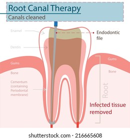 Root Canal Images, Stock Photos & Vectors | Shutterstock