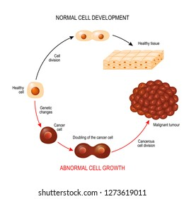 Cancer cell and normal cell. Healthy tissue and Malignant tumour. illustration showing cancer disease development. Vector diagram for your design, educational, biological, science and medical use