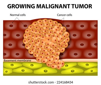 Cancer cells in a growing malignant tumor. malignant neoplasm. metastasis