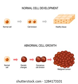 Cancer cells. illustration showing cancer disease development. Healthy tissue and Malignant tumour.  Vector diagram for your design, educational, biological, science and medical use