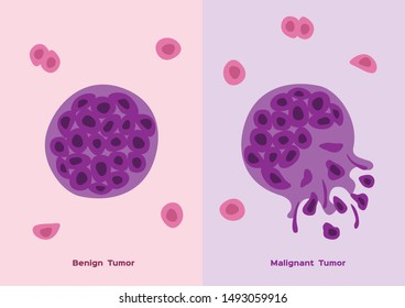 cancer and tumor cell stage and development vector/  malignant and benign type