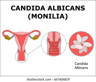 CANDIDA ALBICANS (MONILIA), color vector illustration