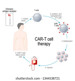 CAR T-cell therapy. Artificial leukocyte receptors are proteins that have been engineered for cancer immunotherapy (killing of tumor cells). genetically engineered. Vector diagram