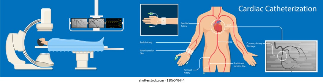 cardiac catheterization treatment