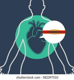 cardiac catheterization vector logo icon design