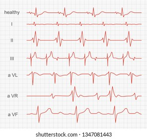 Cardiogram, heart red rhythm on monitor screen. Record of muscle activity within made by a cardiograph. Vector illustration