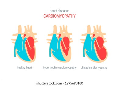 Cardiomyopathy disease concept. Vector illustration for articles, education textbooks, infographics etc. in flat style