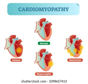 Cardiomyopathy - human heart medical disorders cross section diagram, vector illustration examples with normal, dilated, hypertrophic and restrictive conditions. Heart muscle diseases.