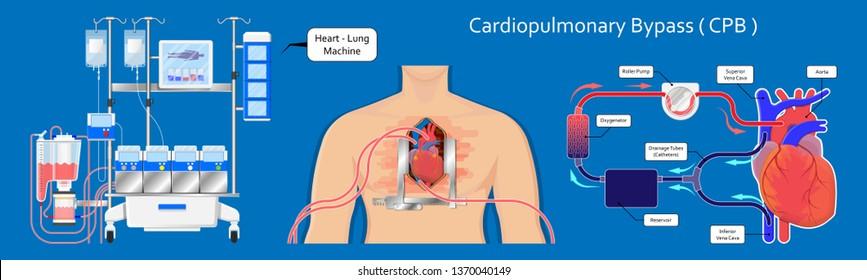 Cardiopulmonary bypass heart lung machine coronary oxygenator perfusiologist cardiologist operating life support coronary artery bypass graft