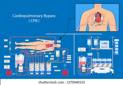 Cardiopulmonary bypass heart lung machine coronary oxygenator perfusiologist cardiologist operating life support coronary artery bypass graft