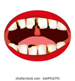 caries. Smell from the mouth. Halitosis. The structure of the teeth and oral cavity. Diseases of the teeth caries. Infographics. Vector illustration on isolated background.