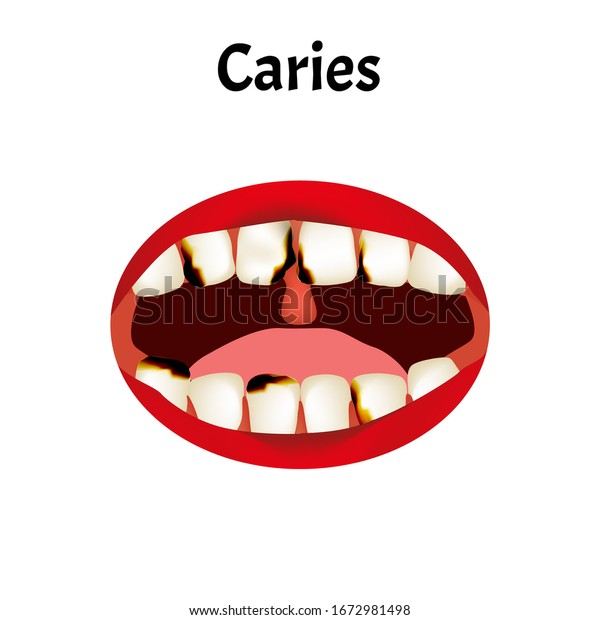 匂い 虫歯 の 差し歯と歯茎の隙間が臭う…原因とケア方法 :歯科医